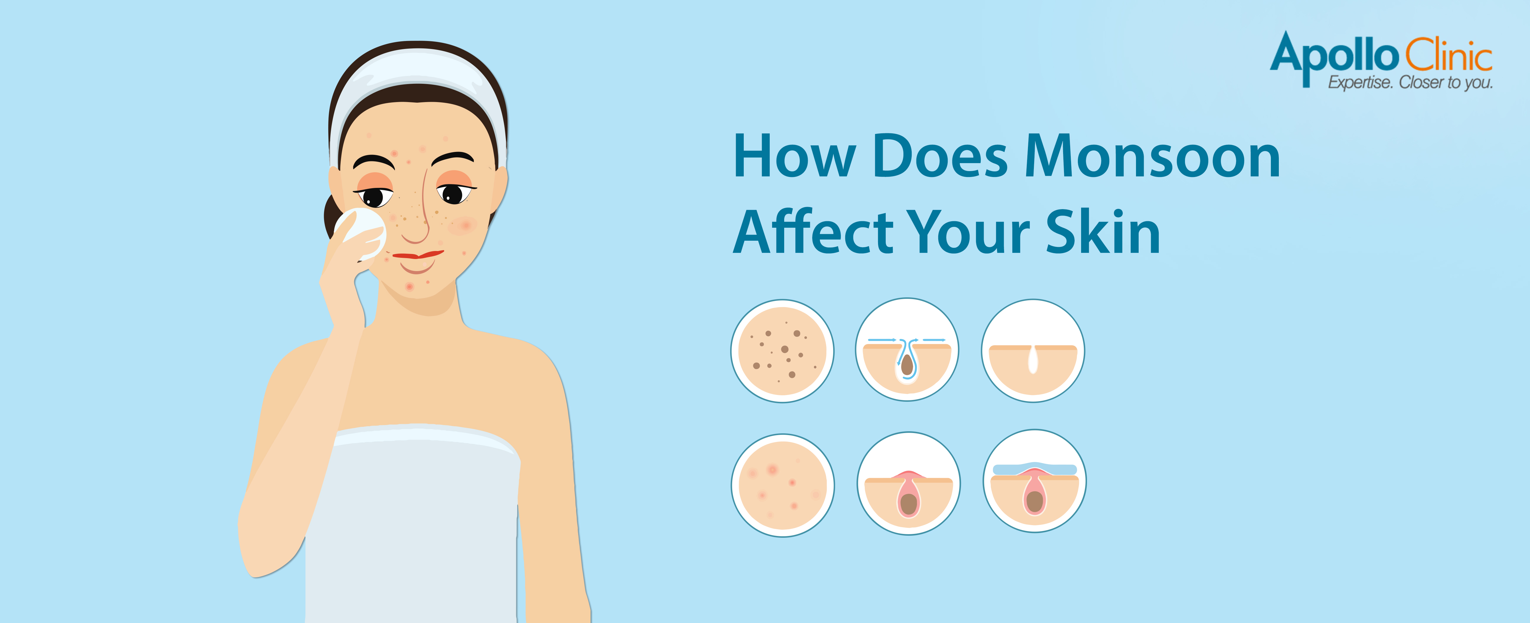 How Does Monsoon Affect Your Skin - Apollo Clinic Blog